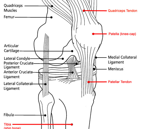 part ii  what is a disrupted quadriceps tendon